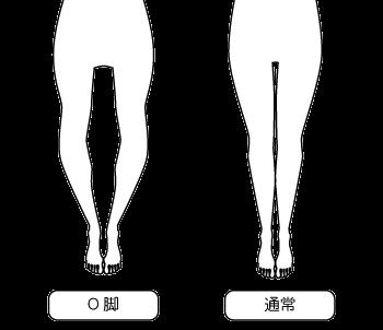 岡崎市アームズ整骨院のO脚比較画像