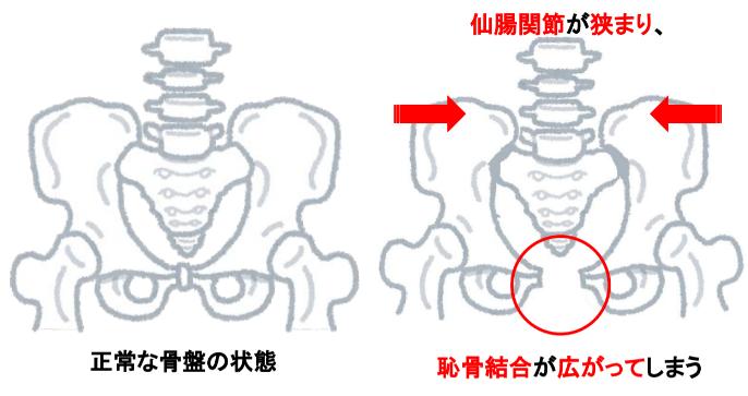 岡崎市アームズ整骨院の骨盤の状態画像