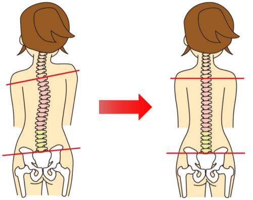 岡崎市アームズ整骨院の骨盤と姿勢の関係画像